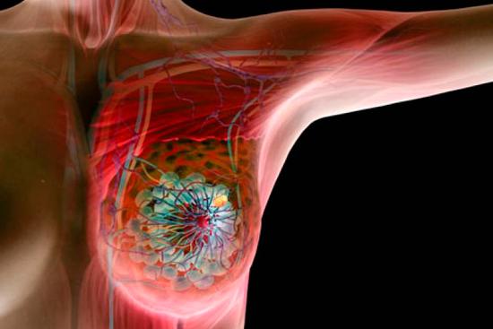 Химиотерапия рака молочных желез