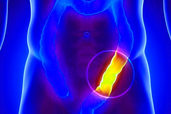 Осторожно – кишечная непроходимость! Причины и лечение болезни
