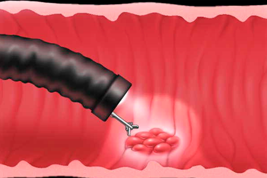 Биопсия желудка