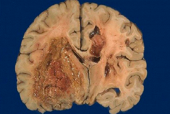 Глиобластома: каковы шансы на жизнь?
