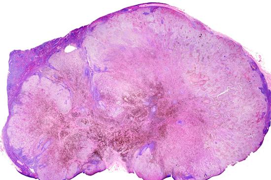 Метастазы меланомы в печень