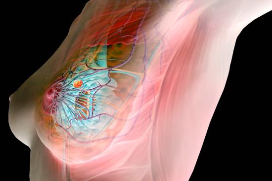 Раковая опухоль молочной железы