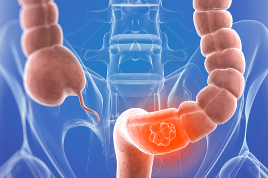Лечение рака сигмовидной кишки