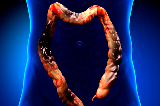 Рак сигмовидной кишки 4 стадии