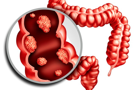 Аденокарцинома прямой кишки