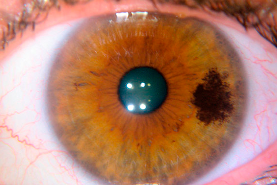 Увеальная меланома