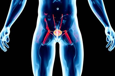 Особенности рака предстательной железы